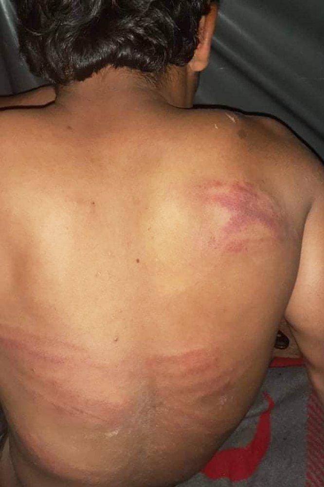 Cicatrice sulla schiena di un migrante